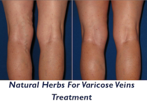 varicose-vein-treatment